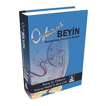Osborn Beyin: Görüntüleme, Patoloji ve Anatomi