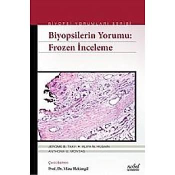 Nobel Týp Kitabevleri  Biyopsilerin Yorumu: Frozen Ýnceleme Biyopsi Yorumlarý Serisi