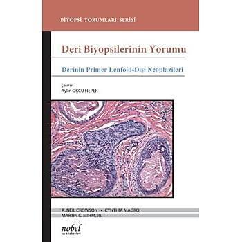 Nobel Týp Kitabevleri Deri Biyopsilerinin Yorumu: Derinin Primer Lenfoid-Dýþý Neoplazileri
