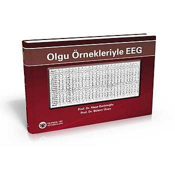Güneþ Kitabevi   Olgu Örnekleriyle EEG Neþe Dericioðlu Bülent Ünay