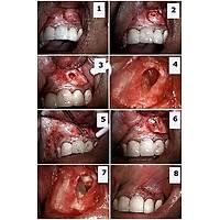 ANGELUS Mta 2 Dozluk Endodontik Siman