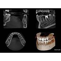 Volux9 3D Dental CT Tomografi