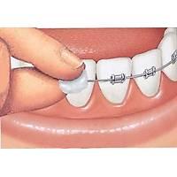 Ortodonti Mumu - Diþ Teli Mumu - Ortodontik Wax -