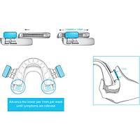 BluePro Diþ Hekimince Uygulanan FDA Onaylý Horlama Uyku Apnesi Protezi