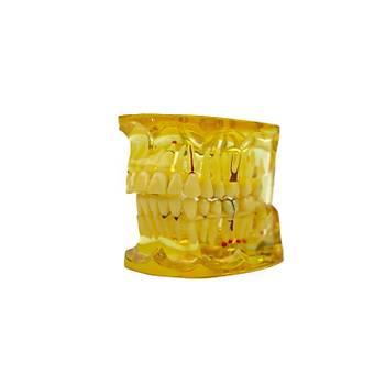 Endodonti Perio Eðitim Modeli