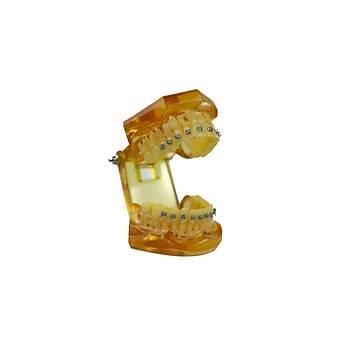 Ortodonti Metal Braket Model