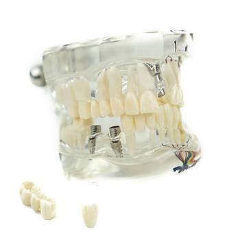 Cerrahi Model Implant & Köprü Eðitim Modeli