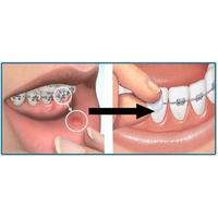 Ortodonti Mumu - Diþ Teli Mumu ( 5 paket - Ucretsiz Kargo ) - Ortodontik Wax