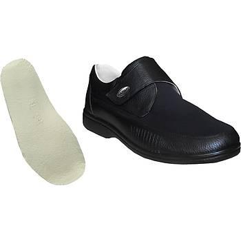 Halluks Valgus ve Çekiç Parmak ayakkabısı Erkek HLX51 ( Çok Satan )