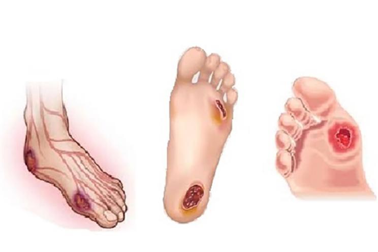 diyabetik-ayakkabi-terlik-siparis