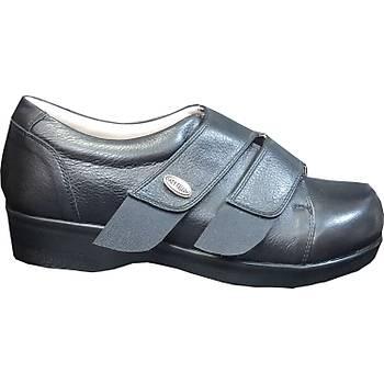 Şiş ve Ödemli Geniş Ayaklar İçin Diyabet Ayakkabısı Bayan ODDG05S