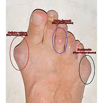 Bayan Halluks Valgus ve Çekiç Parmak Ayakkabısı HLX-01S