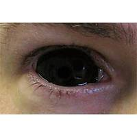 BLACK SCLERA LENSES