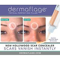 DERMAFLAGE CONCEALS SCARS & FROWN LINES INSTANTLY