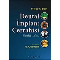 Dental Ýmplant Cerrahisi Renkli Atlasý