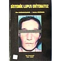 Sistemik Lupus Eritematoz -
