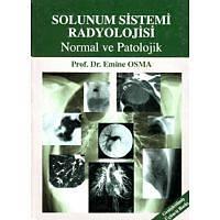 Solunum Sistemi Radyolojisi