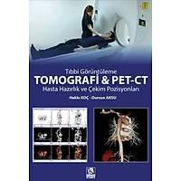 Tomografi ve Pet-Ct Hasta Hazýrlýk ve Çekim Pozisyonlarý