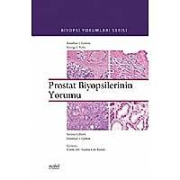 Prostat Biyopsilerinin Yorumu Biyopsi Yorumlarý Serisi